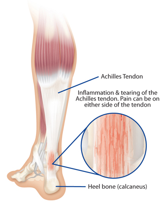 treatment for achilles tendonitis in augusta ga | georgia clinic, Human Body