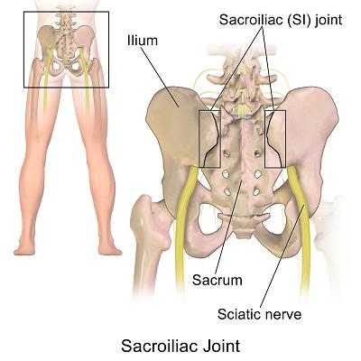 Sacroiliac_Joint-small